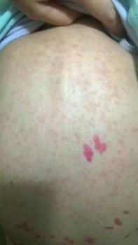 аллергия на прививку у щенка