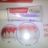 Colgate Total gum care! Лечебная зубная паста от Кровоточивости десен. Объедин. Бесплатно!